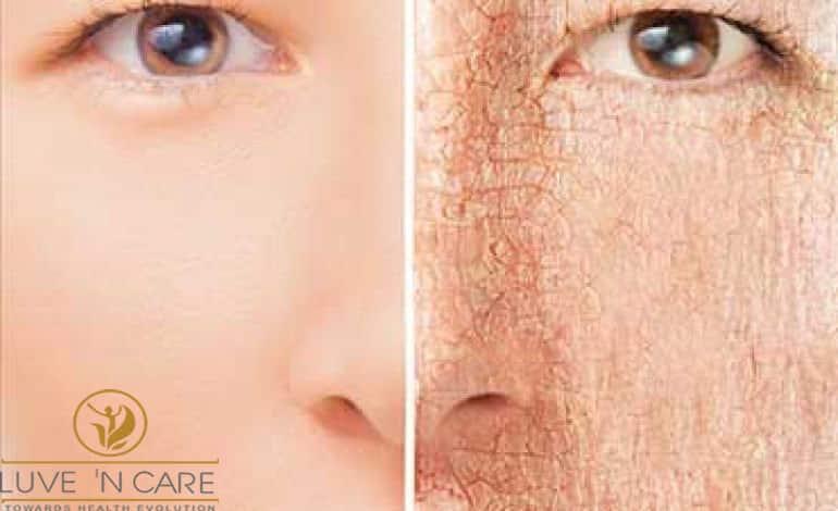 خشکی پوست صورت